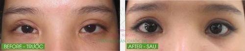 Trong trường hợp không may bị cắt mí hỏng, khiến mí to, giả và hai vết sẹo xấu lộ rõ, có thể nhờ đến kỹ thuật phẫu thuật hiện đại chữa trị cho mắt trở nên to tròn tự nhiên hơn.