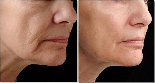 Hình trước và sau khi điều trị săn da bằng Thermage