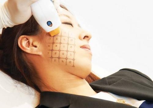 Cách điều trị Thermage theo từng gương mặt
