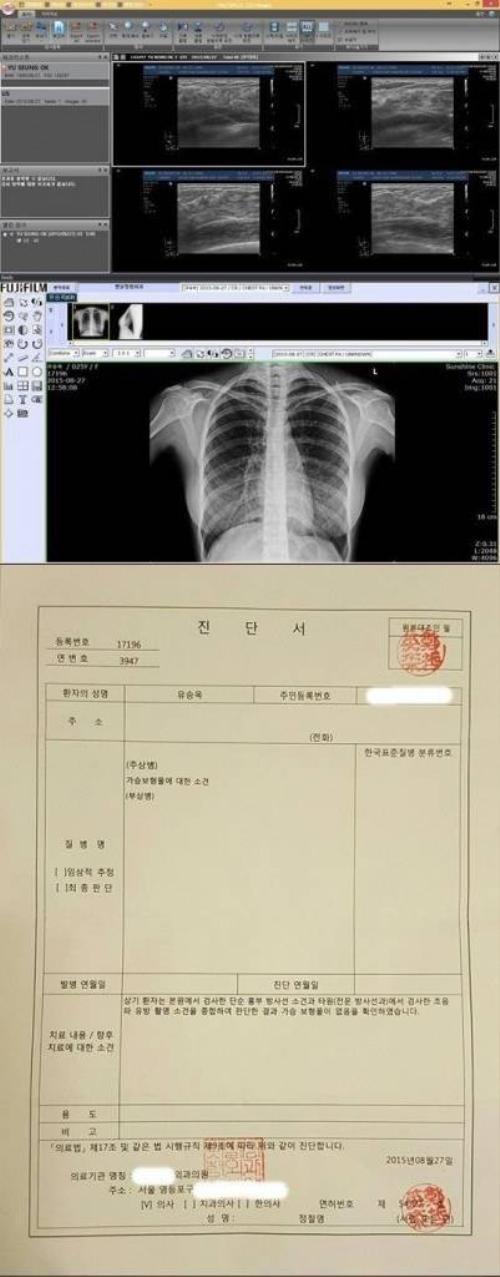 Yoo Seung Ok công khai kết quả chụp cắt lớp và X-quang.