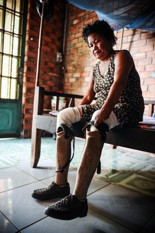 Giờ đây, việc đi đứng của bà Hu phải nhờ vào đôi chân giả này.