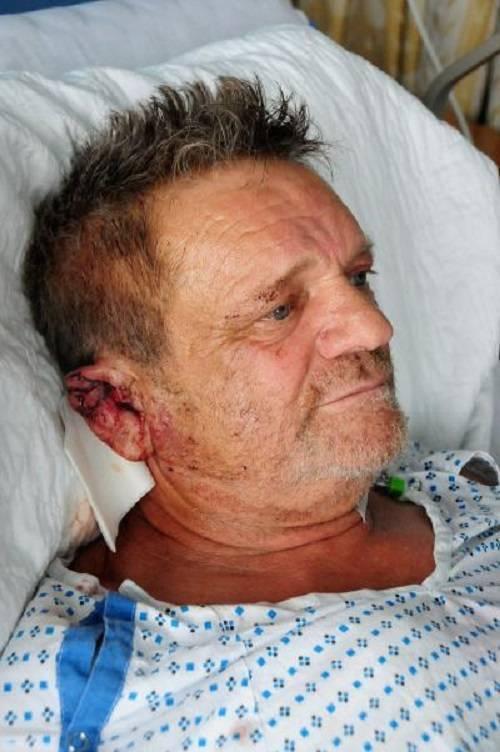 Tình trạng của ông Francesco Bove, 62 tuổi đã dần ổn định.