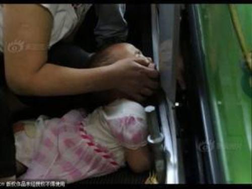 """Bé gái 3 tuổi bị thang cuốn """"nuốt"""" một phần tay."""