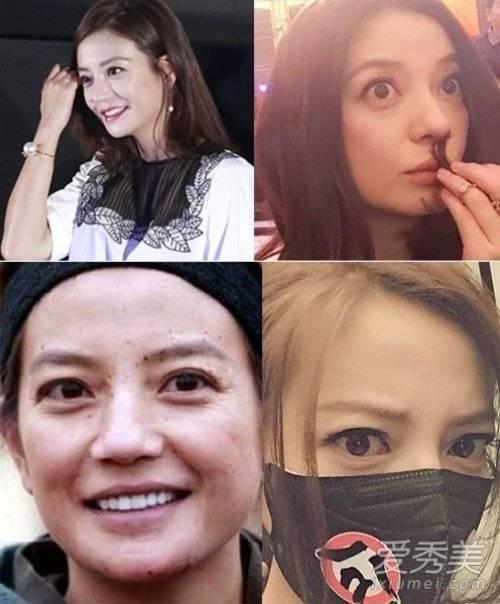 Triệu Vy gặp nhược điểm già nua vì đôi mắt có bọng và da  nhiều tàn nhang. Ở tuổi 39, cô phải thừa nhận nhan sắc thời thanh xuân đã ở cách cô 10 năm.