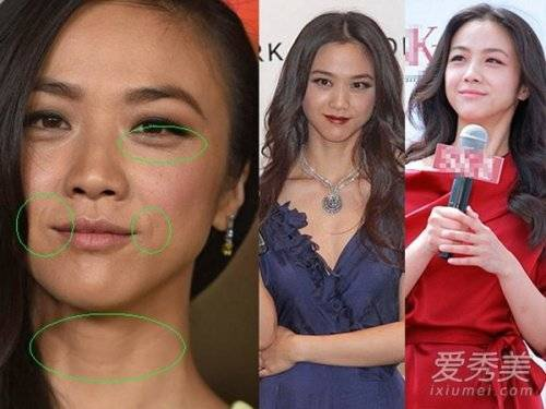 Thang Duy với gương mặt đầy nếp nhăn và vùng cô da chảy xệ thấy rõ.