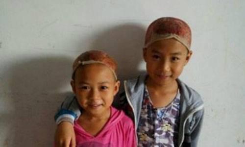Hai em bé hiến da đầu cho cha. Ảnh: CCTV