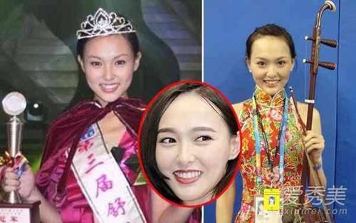 Hình ảnh năm 2001 khi Đường Yên tham dự một cuộc thi sắc đẹp. Cô có làn da ngăm, răng không đẹp như hiện tại.