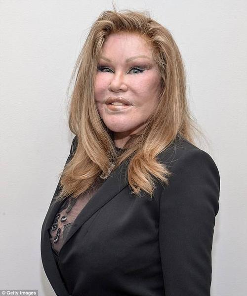 """Jocelyn Wildenstein từng bỏ ra 4 triệu USD để chỉnh sửa dung nhan nhưng hậu quả là gương mặt trở thành """"mặt mèo"""". Có nguồn tin tiết lộ, Jocelyn muốn dao kéo để níu giữ chồng là tỷ phú Alec Wildenstein nhưng thất bại. Cặp đôi chia tay vào năm 1997."""