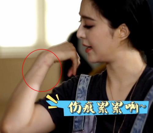 Phạm Băng Băng khoe tay bị thương sau khi quay show để né câu hỏi đời tư.