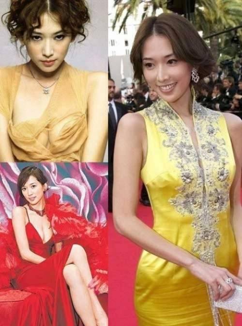 Lâm Chí Linh từng đau đầu khi liên tục bị cáo buộc là người đẹp quyến rũ nhờ dao kéo sau khi đại tu vòng một.