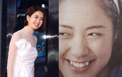 """Nữ diễn viên Lee Yo Won đã """"gọt"""" đi 2 chiếc răng khểnh nhọn hoắt ở 2 bên và chỉnh sửa lại để hàm răng đều đẹp hơn."""