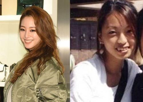 Nữ diễn viên Han Ye Seul chỉnh sửa khá nhiều trên gương mặt, trong đó có hàm răng không đồng đều.