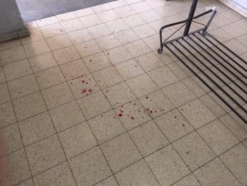 Paula Slier chụp lại ảnh các vết máu trên mặt đất trong khi theo chân cảnh sát tìm kiếm những kẻ tấn công. Ảnh: Twitter.