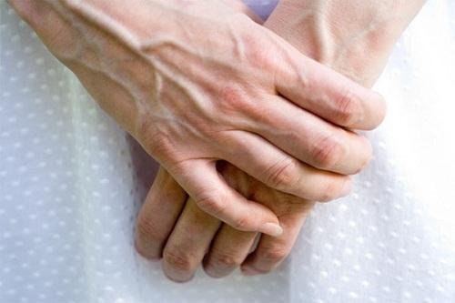 Da tay dễ bị nhăn nheo, nổi gân khi không chăm sóc cẩn thận.