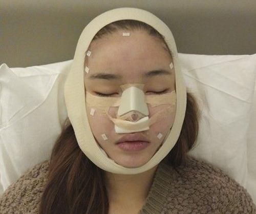 Hình ảnh mặt mũi sưng vù và vẫn còn băng bó của Kỳ Hân khiến người xem đau đớn thay.