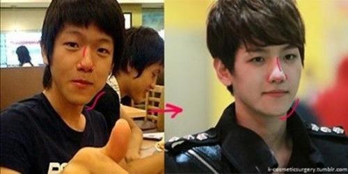 Baekhyun (EXO) và màn lột xác bất ngờ cùng nghi án phẫu thuật thẩm mỹ cằm và mũi.