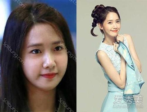 Yoona với bức ảnh so sánh đặt nghi vấn cô gọt mặt và chỉnh mắt.