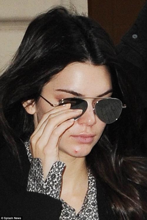 Thiếu đi lớp trang điểm, Kendall bị lộ gương mặt mọc mụn với một vết mụn khá lớn ở cằm.