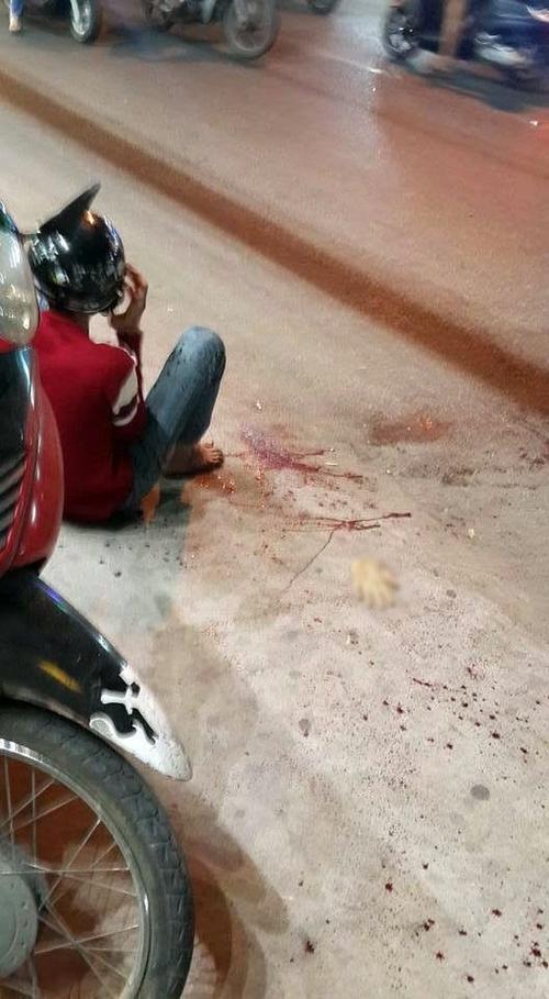 Thiện Phương với bàn tay đứt lìa giữa đường do bị truy sát vào đêm 6/3.