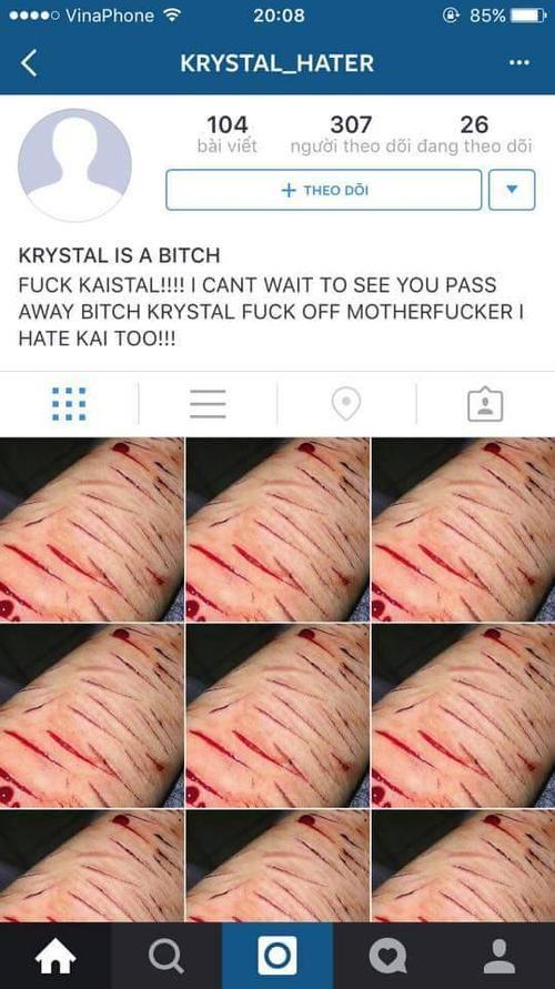 Fan cuồng rạch tay tự tử khi hay tin Kai đã có bạn gái.