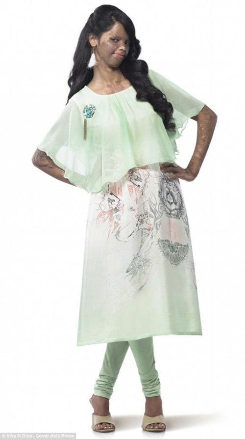 ...thì giờ đây cô ấy được biết đến như một ngôi sao sang trong làng thời trang Ấn khi cô sở hữu hẳn một thương hiệu dành riêng cho các cô gái từng bị mất đi dung mạo vì nạn tạt axit.