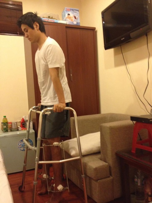 Chàng trai phẫu thuật kéo chân từ 1m67 lên 1m76: 'Vẫn cõng được người yêu như thường!'