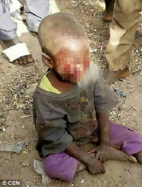 Mẹ kế bạo hành con chồng 4 tuổi vì tè dầm