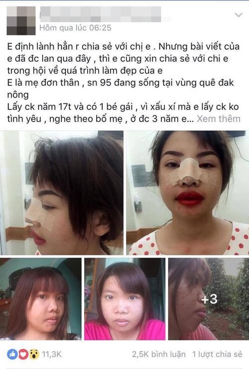 Diện mạo mới của bà mẹ đơn thân ở Đắk Nông quyết đi phẫu thuật vì quá xấu - Ảnh 1