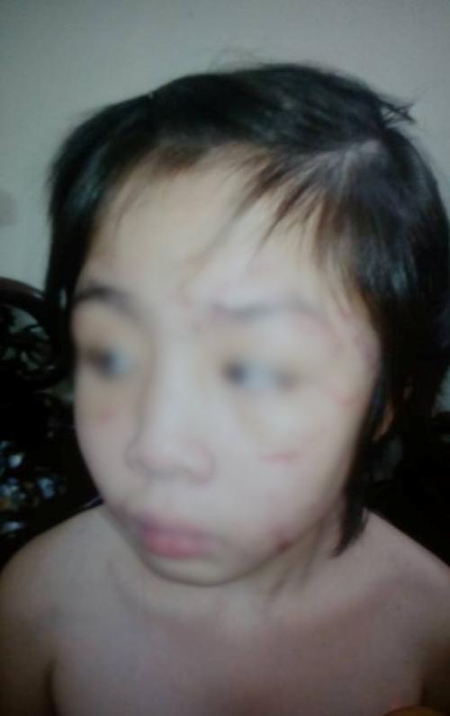Mẹ bé trai bị bạo hành gãy xương sườn, rạn sọ não: 'Nhìn con tôi xót quá, 2 mẹ con cứ thế ôm nhau khóc'