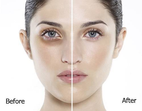 kem trị thâm và nhăn quầng mắt hiệu quả