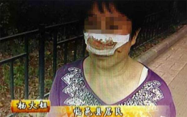 Nạn nhân bị chính chồng mình cắn đứt lìa mũi.