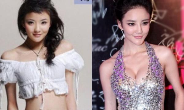 Lưu Vũ Hân với hình ảnh khác xa giữa ngày ấy và bây giờ cho thấy cô từng thẩm mỹ.