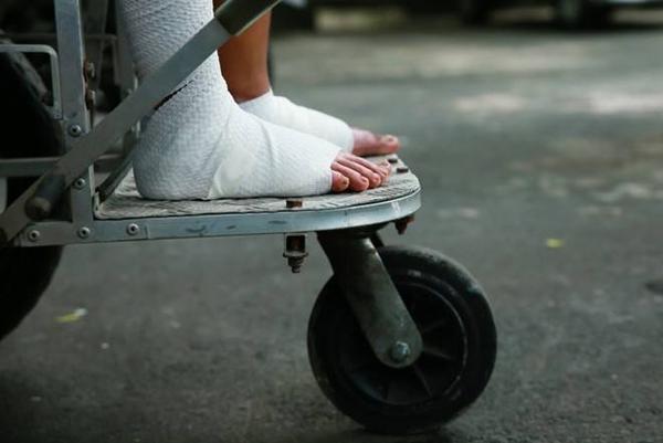Hai bàn chân bị bỏng của em vẫn còn băng bó nên Linh vẫn phải ngồi xe lăn.