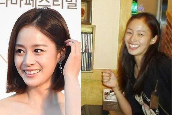Kim Tae Hee cũng mât điểm vì răng to và hơi vẩu khiến hàm răng dường như choáng ngợp gương mặt mỗi khi cười. Hiện tại, diện mạo của bạn gái Bi Rain được nhận xét hoàn hảo.