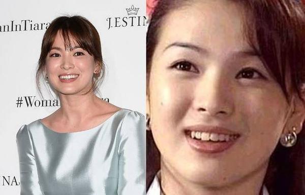 Thời chưa nổi tiếng, hàm răng của Song Hye Kyo không đồng đều khiến nụ cười kém đẹp. Sau khi sửa răng, người đẹp mặt mộc tự tin hơn.