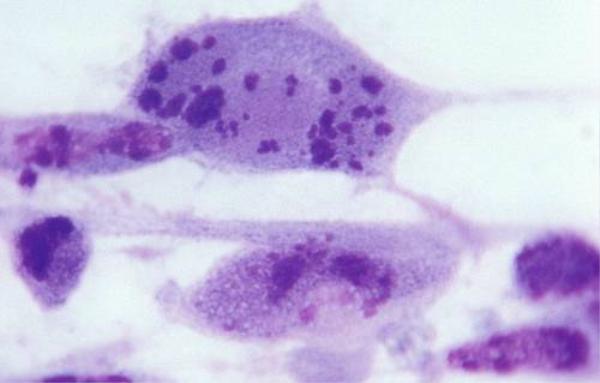 Hơn 3,7 tỷ người ở độ tuổi dưới 50 bị các loại virus herpes simplex 1.