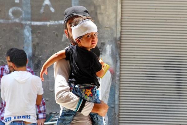 Một em bé bị thương ở đầu sau khi máy bay chiến đấu của Syria rơi xuống một khu chợ đông đúc tại Ariha hôm 3/8/2015.