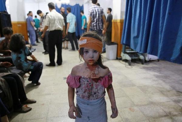 Bé gái ngơ ngác sau khi bị thương trong vụ rải bom của chính quyền Syria xuống làng Douma hôm 22/8/2015.