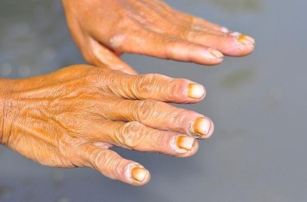 Ngâm mình dưới nước bẩn suốt nhiều giờ nên hầu hết người hành nghề này bị lở loét, ngứa, bệnh thấp khớp... Theo ngư dân, họ thường xuyên bị rách da, chảy máu do đạp trúng mảnh vỡ thủy tinh.