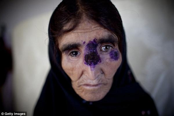 Một phụ nữ Syria gánh chịu căn bệnh chết người từ loài bọ ăn thịt sống.