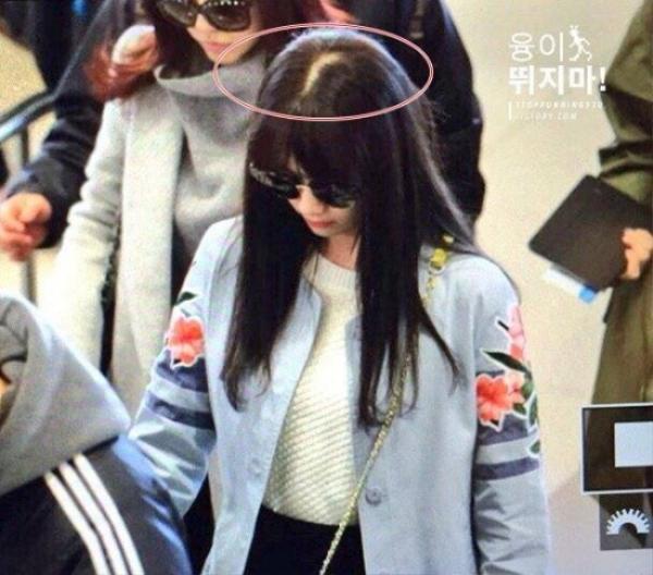 Thành viên Yoona của nhóm SNSD lộ cả mảng da đầu khá rõ khi xuất hiện ở sân bay.