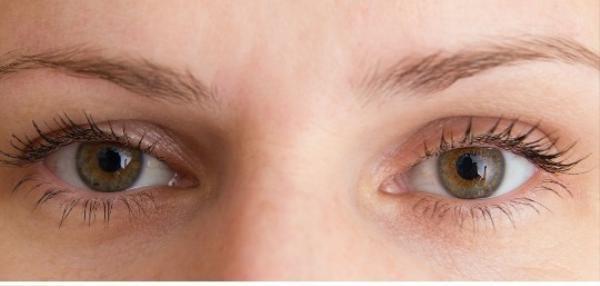 Sụp mí có thể do bẩm sinh hoặc do thường xuyên thức khuya, cơ mắt yếu