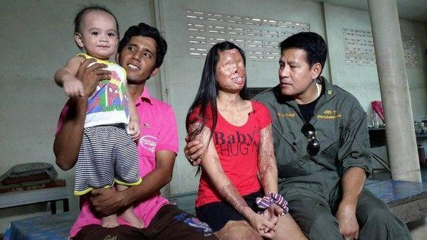 Gia đình cô gái được nam diễn viên Thái Lan Bin Bunluerit thăm hỏi động viên.