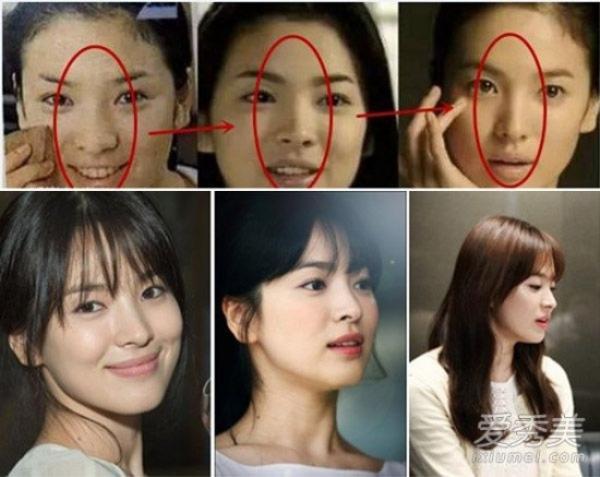 Song Hye Kyo đẹp đến độ hoàn hảo. Ở tuổi 35, cô ngọt ngào và trẻ trung như mới 20. Nhưng thực tế, kiều nữ mặt mộc luôn phải đối diện với nghi án nâng mũi. Từ khuôn mũi to, hơi cong, giờ cô đã có chóp mũi cao và thon gọn.