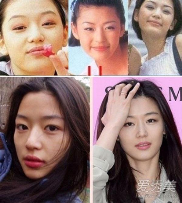 Jeon Ji Hyun với loạt ảnh bằng chứng đã từng chỉnh sửa mắt và mũi.  Đặc biệt là vùng mí mắt trên, cô từng bị sưng húp nhưng giờ lại hoàn toàn không có tì vết.