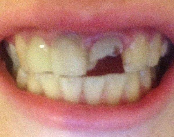 """Nguyên nhân dẫn tới tình trạng răng """"bay theo chiều gió"""" là do hậu quả của căn bệnh tiểu đường type 1 mà Linzi mắc phải từ nhỏ."""