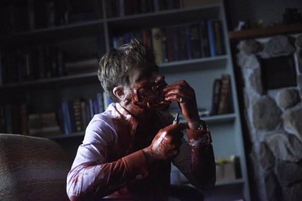 "HANNIBAL -- ""Tome-wan"" Episode 212 -- Pictured: Michael Pitt as Mason Verger -- (Photo by: Sophie Giraud/NBC)"