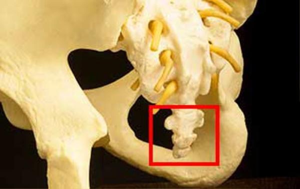 Xương cụt là phân khúc cuối cùng của xương cột sống.
