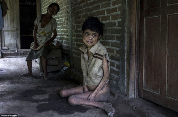Sinem, người bị hội chứng Down ngồi trên sàn nhà ẩm ướt tại Krebet, Jambon, Indonesia