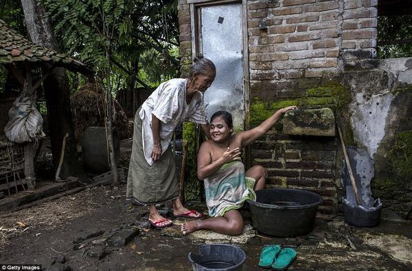 Sati, 39 tuổi mắc hội chứng Down đang được mẹ giúp tắm rửa